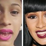 Cardi B teeth before and after surgery