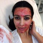 Kim Kardashian blood facial
